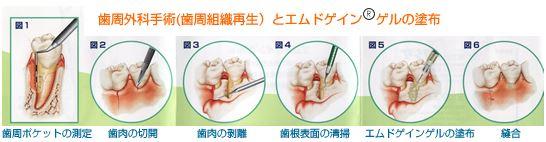 歯周病外科手術(歯周組織再生)とエムドゲイン®ゲルの塗布